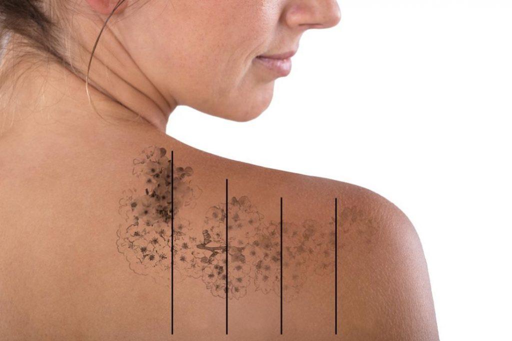 zabieg usuwania tatuażu