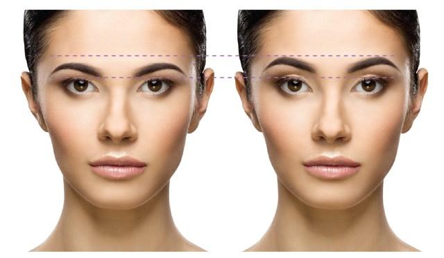 eyebrows lift PerfectLift Robert Janczura Medycyna Estetyczna Kraków Kielce Aqualyx, Nici BARB 4D, Laser CO2, VPL, Cosmelan, powiększanie ust, botox, botoks, makijaż permanentny, kwas hialuronowy, wypełniacze, mezoterapia, lifting twarzy