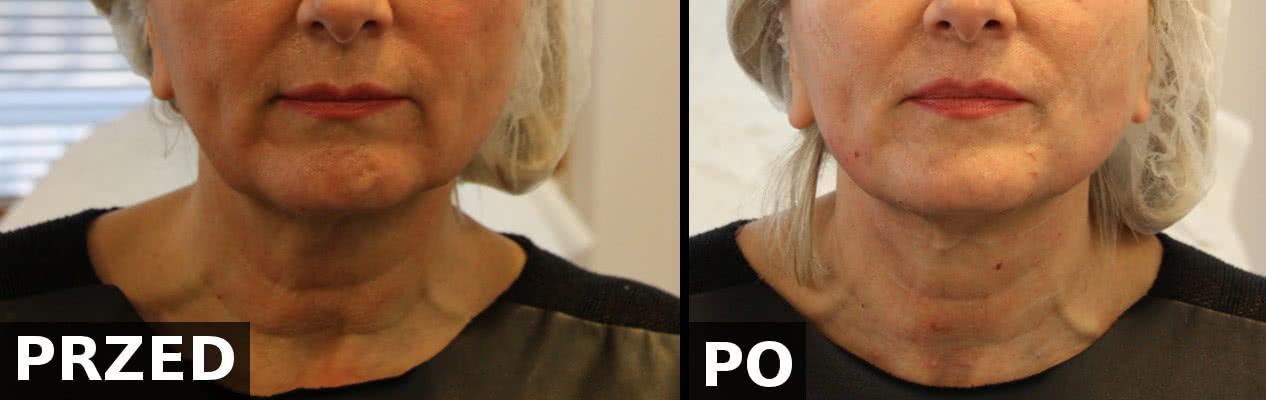 Porównanie efektów przed i bezpośrednio po zabiegu wprowadzenia nici PDO w okolicy żuchwy i szyi. PerfectLift Robert Janczura Medycyna Estetyczna Kraków NeoGen Plasma, Aqualyx, Nici BARB 4D, PDO, Happy Lift, First Lift, Laser CO2, VPL MezoCogs, Ellanse, Radiesse, Cosmelan, Ceny, Promocje